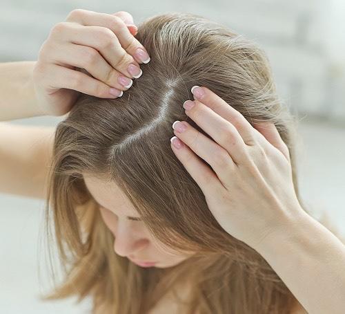Saçlar en erken hangi yaşlarda dökülüyor?