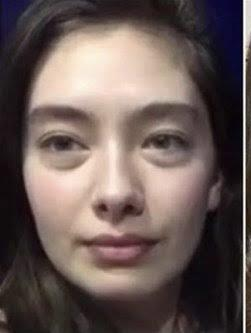 Bu kadının göz altları neden böyle?