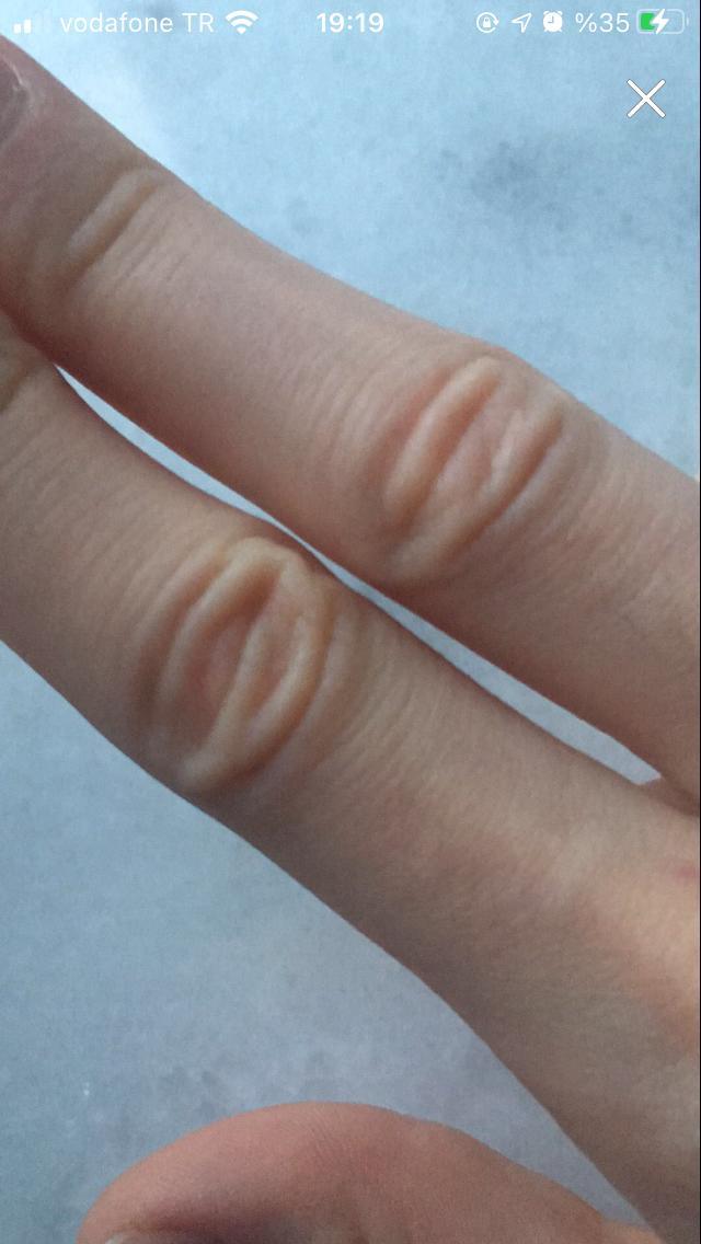 Bu parmağımdaki fazla derileri nasıl yok edebilirim?