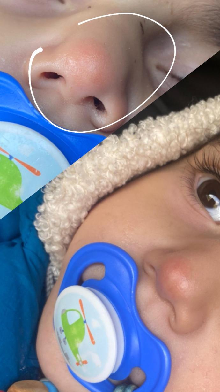 Çocuğumun burnunun ucundaki yanık izi hala geçmedi, ne kullanmam lazım?