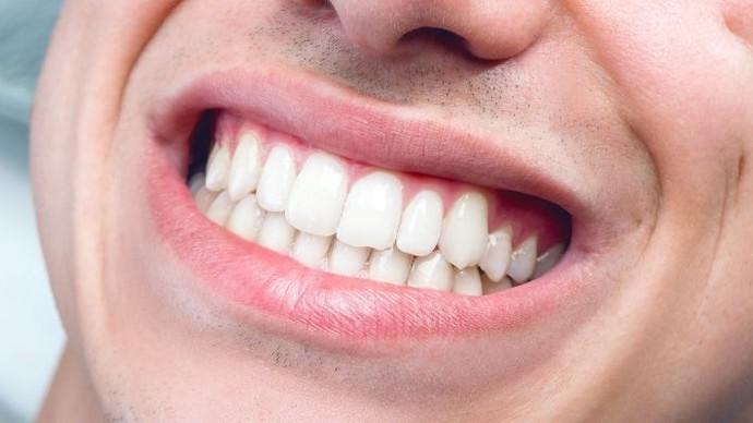 Ağız ve diş sağlığınıza özen gösterir misiniz?