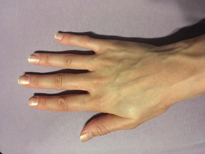 Benim ellerim neden böyle nasıl düzelir ki bunlar?