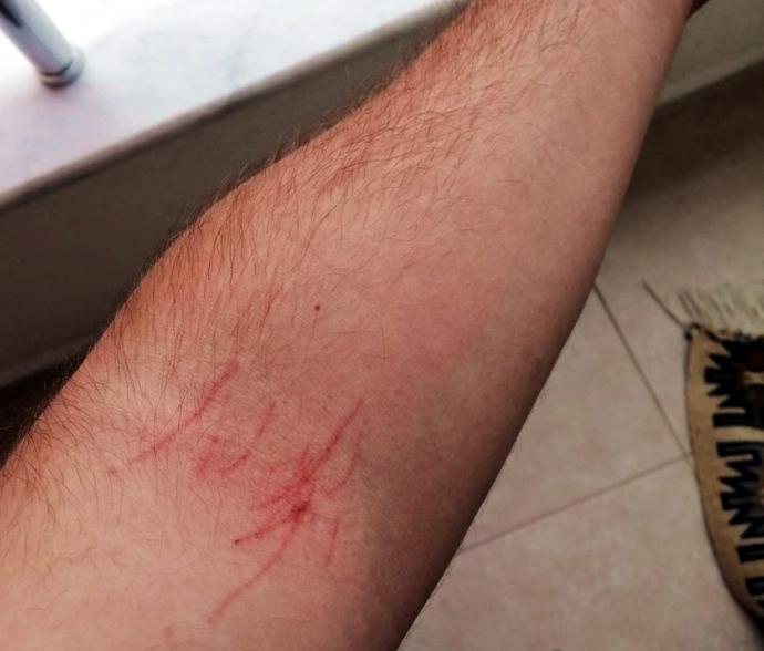 Sabah uyandığımda kolum derinden tırmalanmıştı. Bunu kim yapmış olabilir?