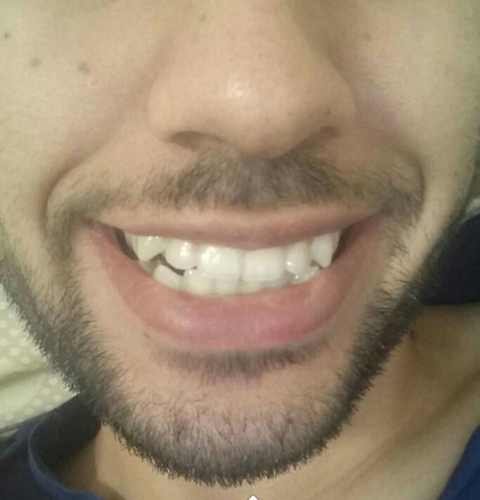 Dişlerim nasıl, dış teli takmalı mıyım?