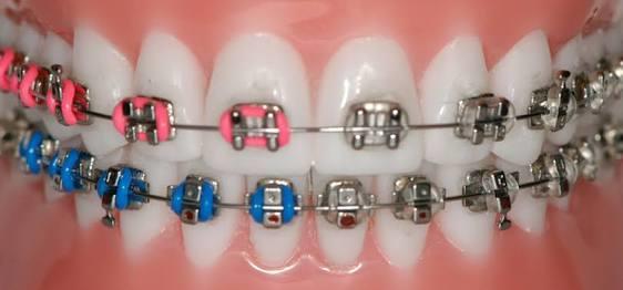 Bordo-Mavi diş teli